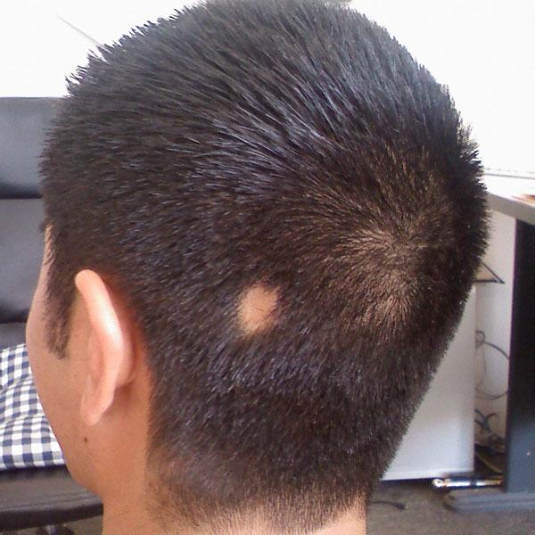 Кортикостероиды и выпадение волос астероиды в марте 2013