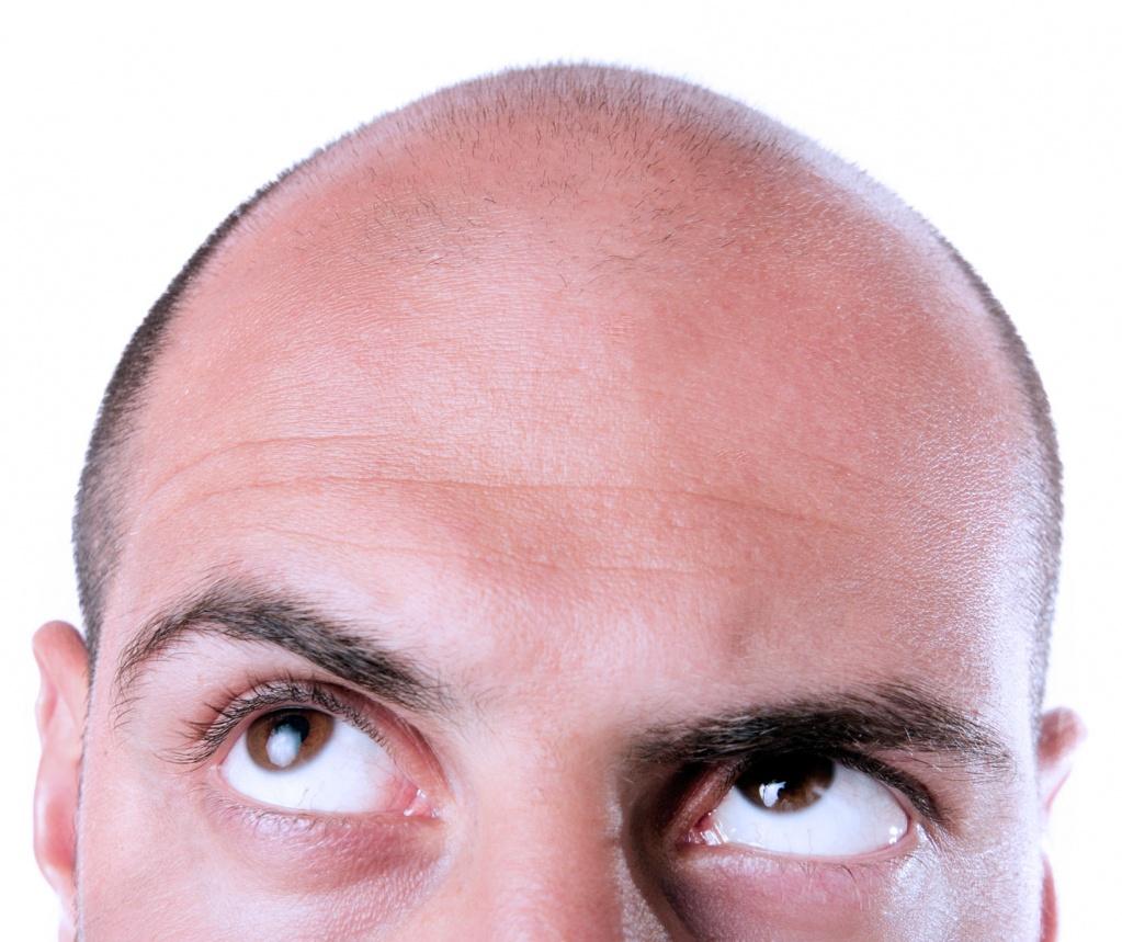 Облысение у мужчин: причины и лечение