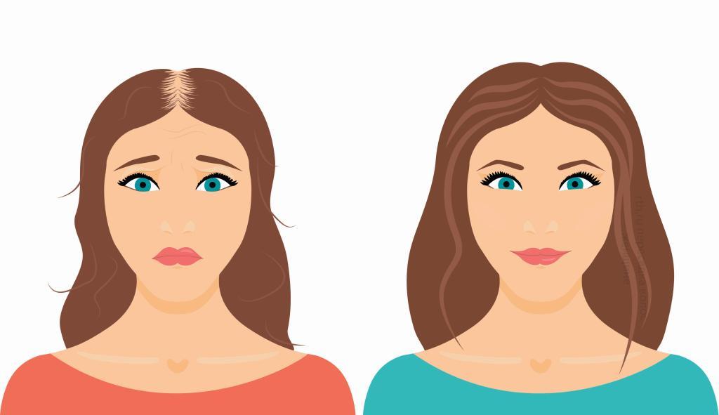 Трихопигментация волос у женщин Фото 1