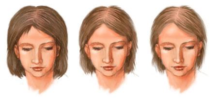 Алопеция — лечение, профилактика выпадения волос